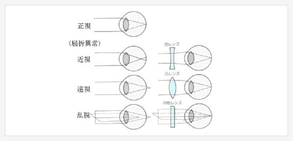 近視・遠視・乱視の説明図