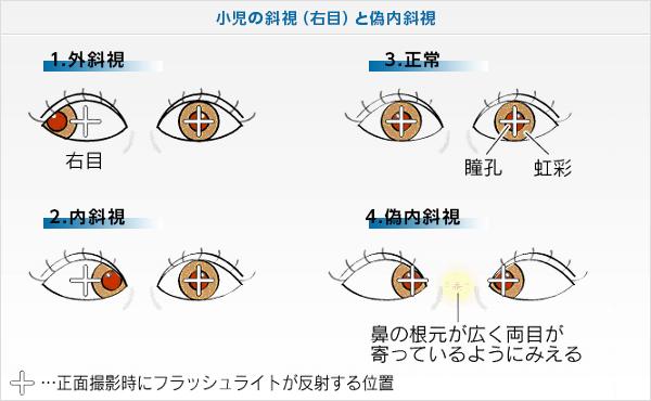 斜視の説明図