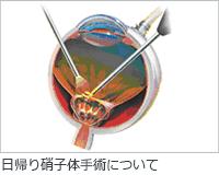 硝子体日帰り手術イメージ