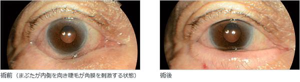 眼瞼内反の手術前・術後