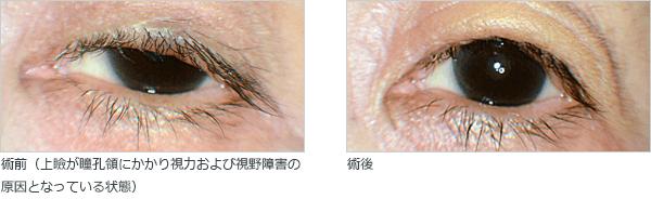 眼瞼下垂の手術前・術後