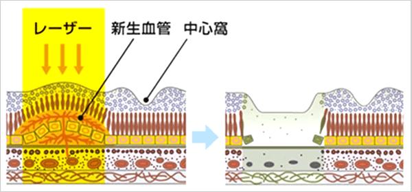 加齢黄斑変性のレーザー治療イメージ