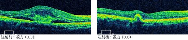 加齢黄斑変性に対する抗VEGF抗体治療の注射前後の視力