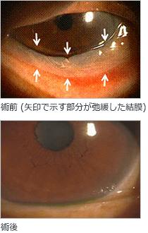 結膜弛緩症の手術イメージ