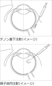 網膜静脈閉塞症の薬物治療イメージ