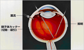 網膜静脈閉塞症の手術イメージ