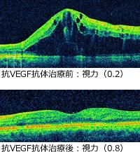 抗VEGF抗体治療前後の視力