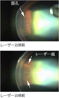 網膜裂孔・剥離のレーザー治療イメージ