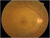 黄斑円孔イメージ