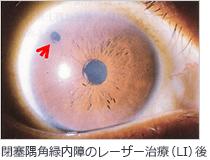 閉塞隅角緑内障のレーザー治療(LI)後