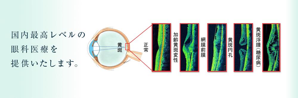 患者様満足度の高い眼科医療の提供を目指して