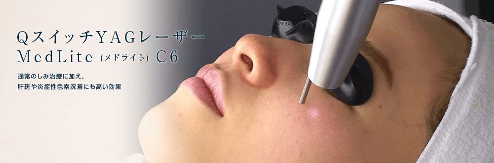 QスイッチYAGレーザーMedLite (メドライト) C6通常のしみ治療に加え、肝斑や炎症性色素沈着にも高い効果