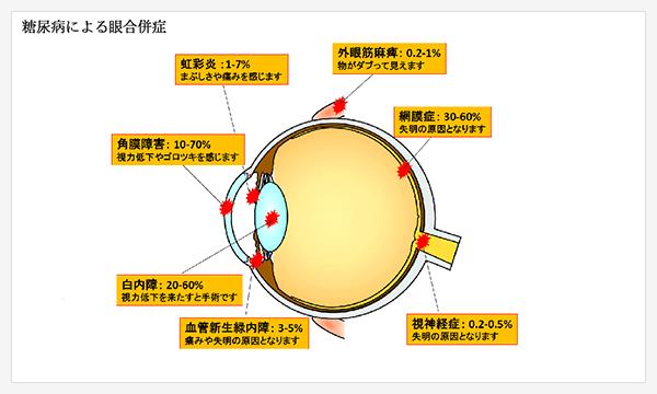 糖尿病による眼合併症