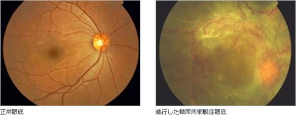 正常眼底 進行した糖尿病網膜症眼底
