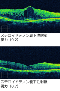 ステロイドテノン嚢下注射前後の視力