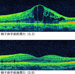 硝子体手術前後の視力